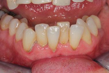 Nánosy zubního plaku a zubního kamene na krčcích dolních zubů s nasedajícím zánětem dásně.