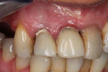 Dutina ústní postižená paradontopatií.